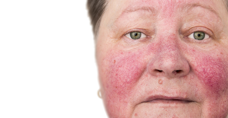 Rosacea Treatments Skin And Laser Center Of Nj